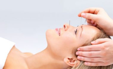 Akupunktura (Celje)